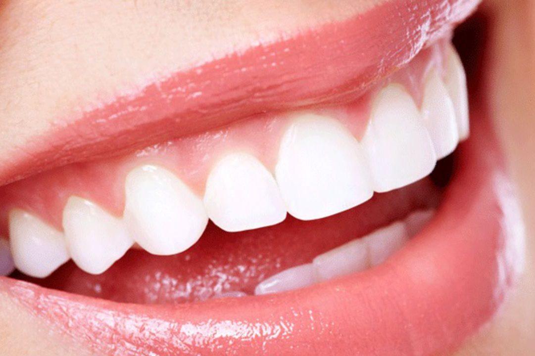 Rêver de dent